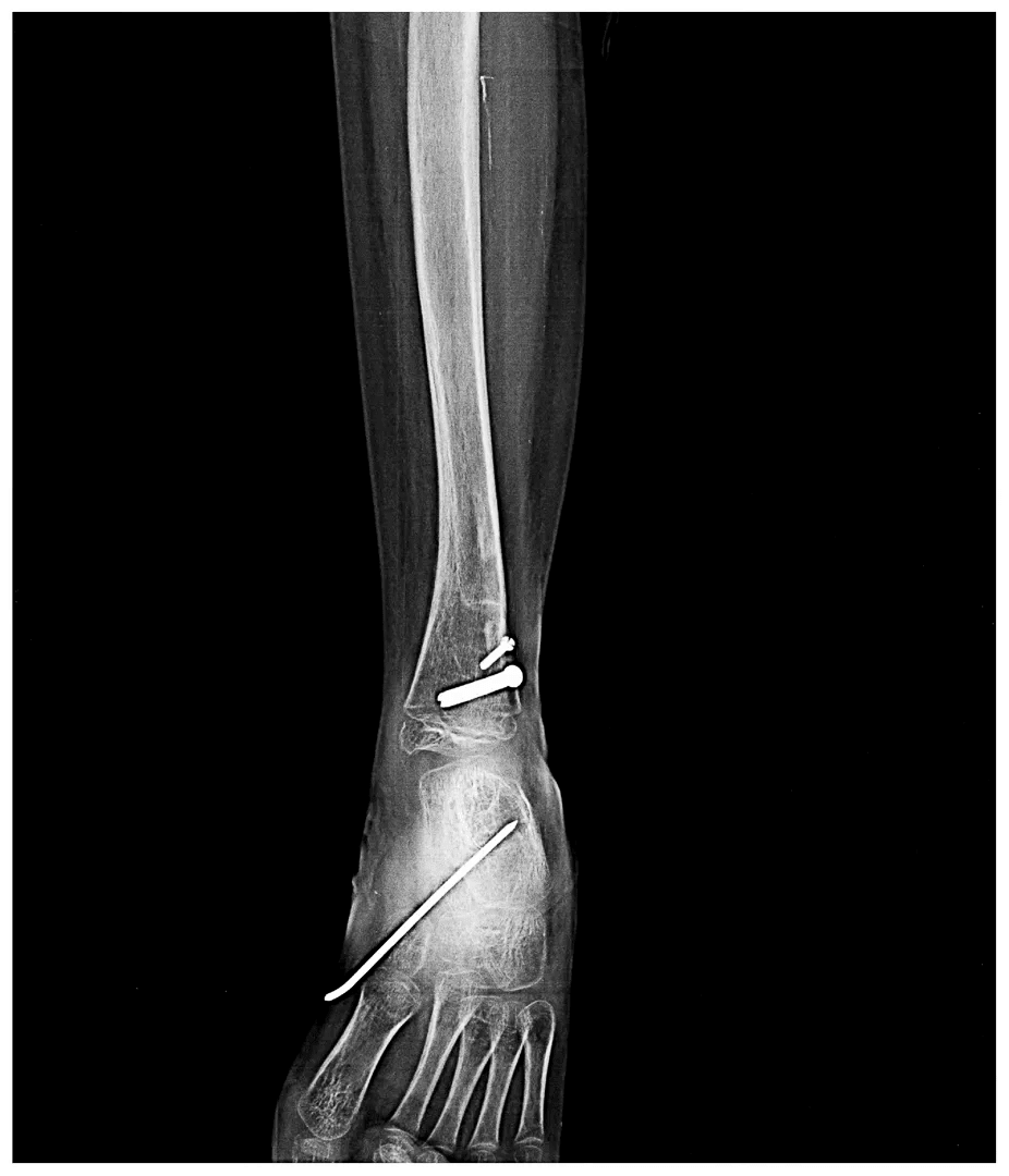 Proximal Femoral Focal Deficiency X-Ray - 2