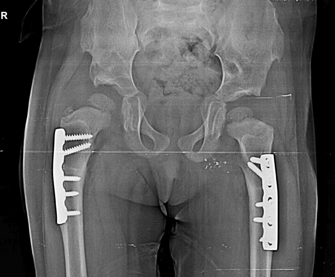 Congenital Hip Dislocation Treatment X-Ray - 4