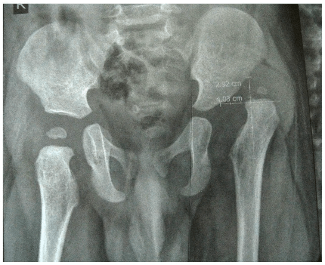 Congenital Hip Dislocation Treatment X-Ray - 1