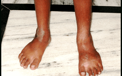 Clubfoot Deformity: Can Children Born with Clubfoot Lead Normal Lives?